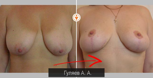 Фото до и после уменьшения груди.